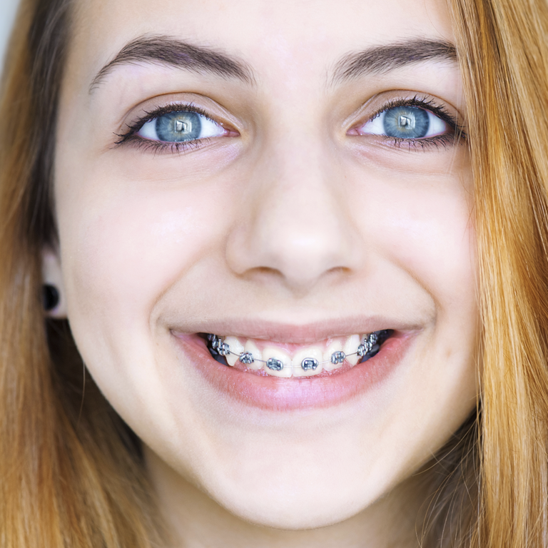 chica brackets metálicos
