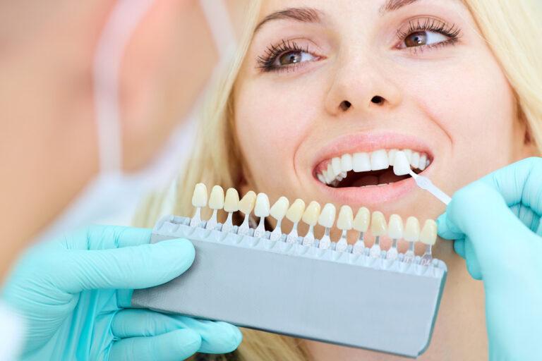 tono blanqueamiento dental