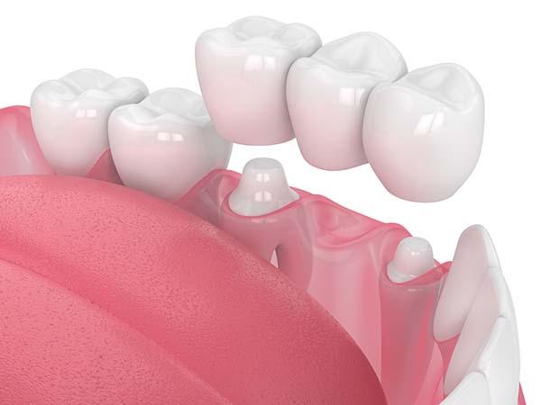 puente dental 3 piezas